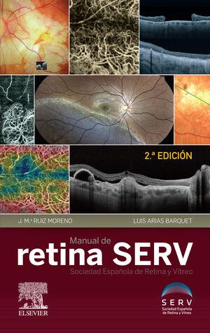 MANUAL DE RETINA SERV (2ª ED.)